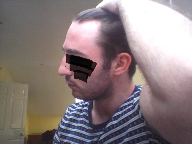 Should I Start Worrying Age 20 And Receding Hairlosstalk Forums