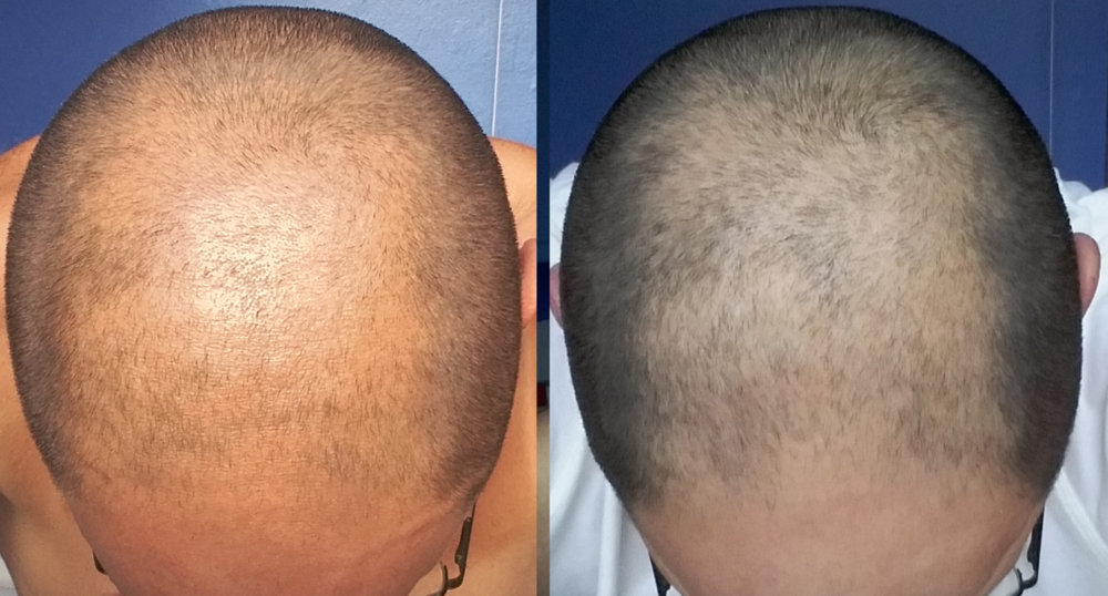 Finasteride Before And After Pics Any Progress Hairlosstalk Forums