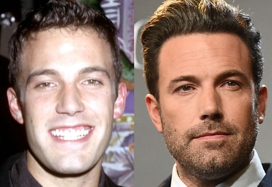 Ben-Affleck-before-after-hair.jpg