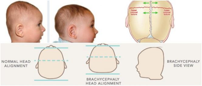 brachycephaly-665x285.jpg