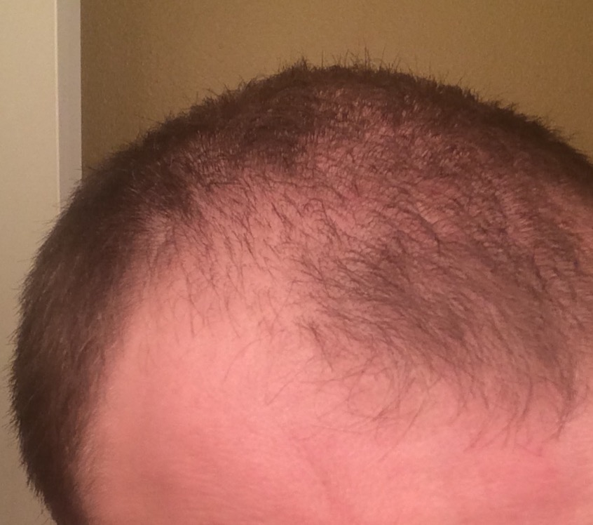 29m Finasteride And My Side Effects Looking For Options Hairlosstalk Forums