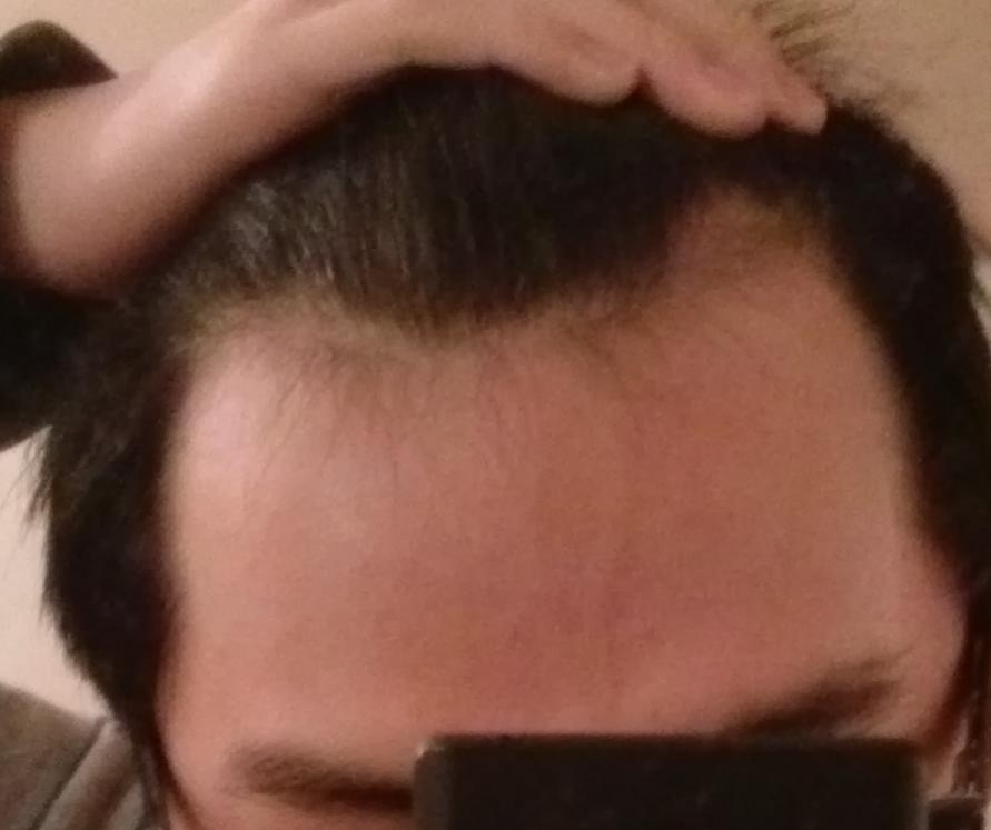 17 With Receding Hairline Help Hairlosstalk Forums