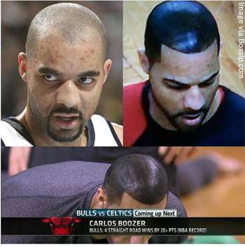Carlos-Boozer-Before-and-After-his-Shoe-Polish-Hair-Look-to-Hide-Hair-Loss.jpg