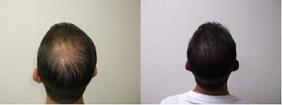 CBD-Oil-Before-After-Hair-Growth.jpg