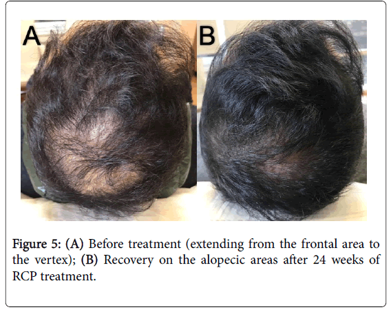 cosmetology-trichology-alopecic-areas-5-137-g005.png