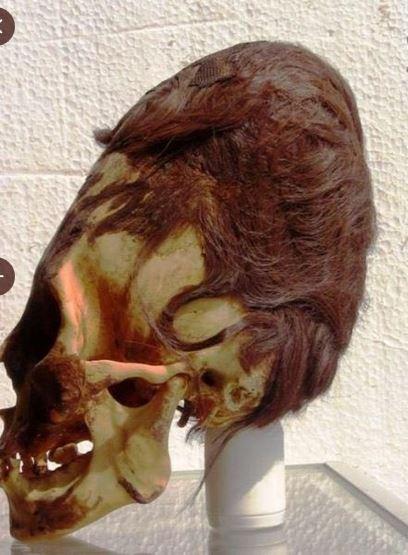 craneo deformado con cabello paracas peru.JPG