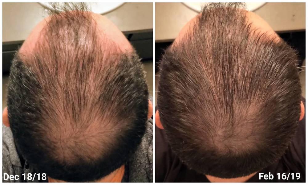 Microneedling Photo Results Summary Hairlosstalk Forums