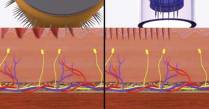 derma-roller-vs-derma-pen.jpg