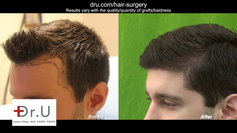 Dr._U_Uses_3200_Advanced_FUE_UGrafts_to_Create_Hairline_7-768x432.png