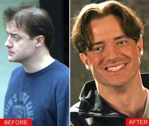 Thread On Celebrities Who Have Gone From Significant Hair Loss To