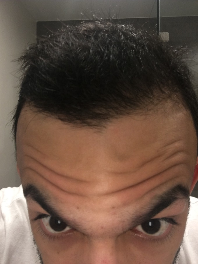 Am I In The Early Stages Of A Receding Hairline Will Minoxidil Help Me At All Hairlosstalk Forums