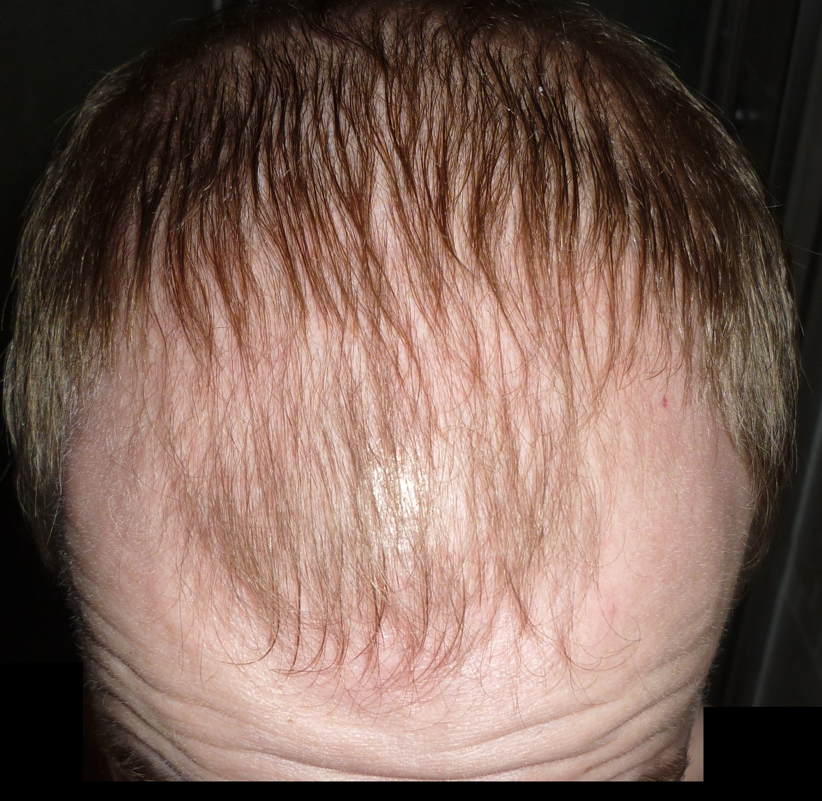 Hair Falling Out Shedding After Hair Transplant Nyc
