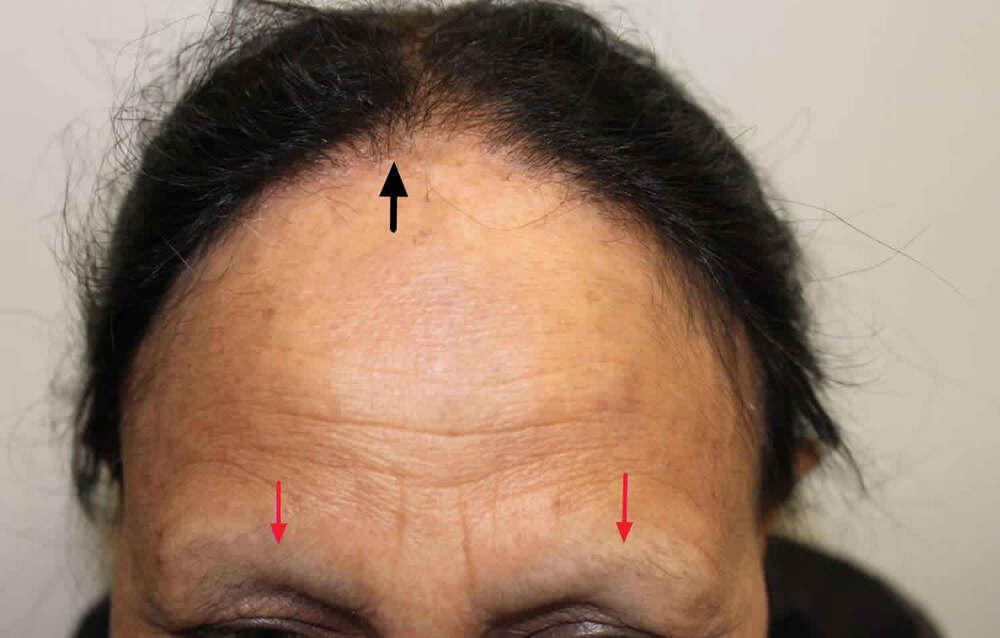frontal-fibrosing-alopecia.jpg