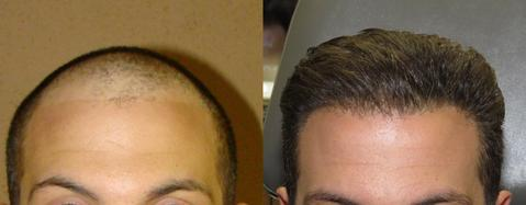 FUE-Hair-Transplant-Before-and-After-1_large.jpg