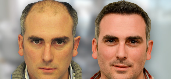 Fue-Hair-Transplant-Before-And-After.jpg