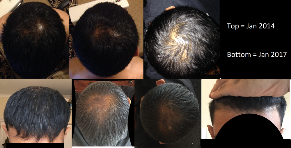 finasteride 1mg for hair regrowth