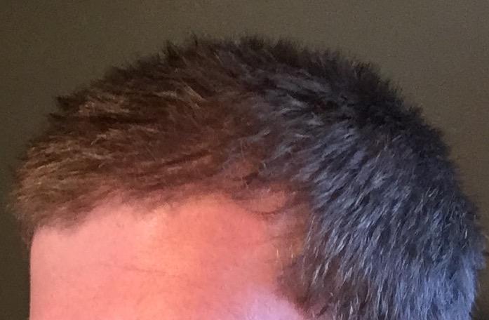 Balding Or Hair Whorl 24 Y O Hairlosstalk Forums