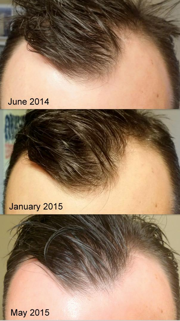 After 6 Months On Minoxidil And Finasteride Hairlosstalk Forums