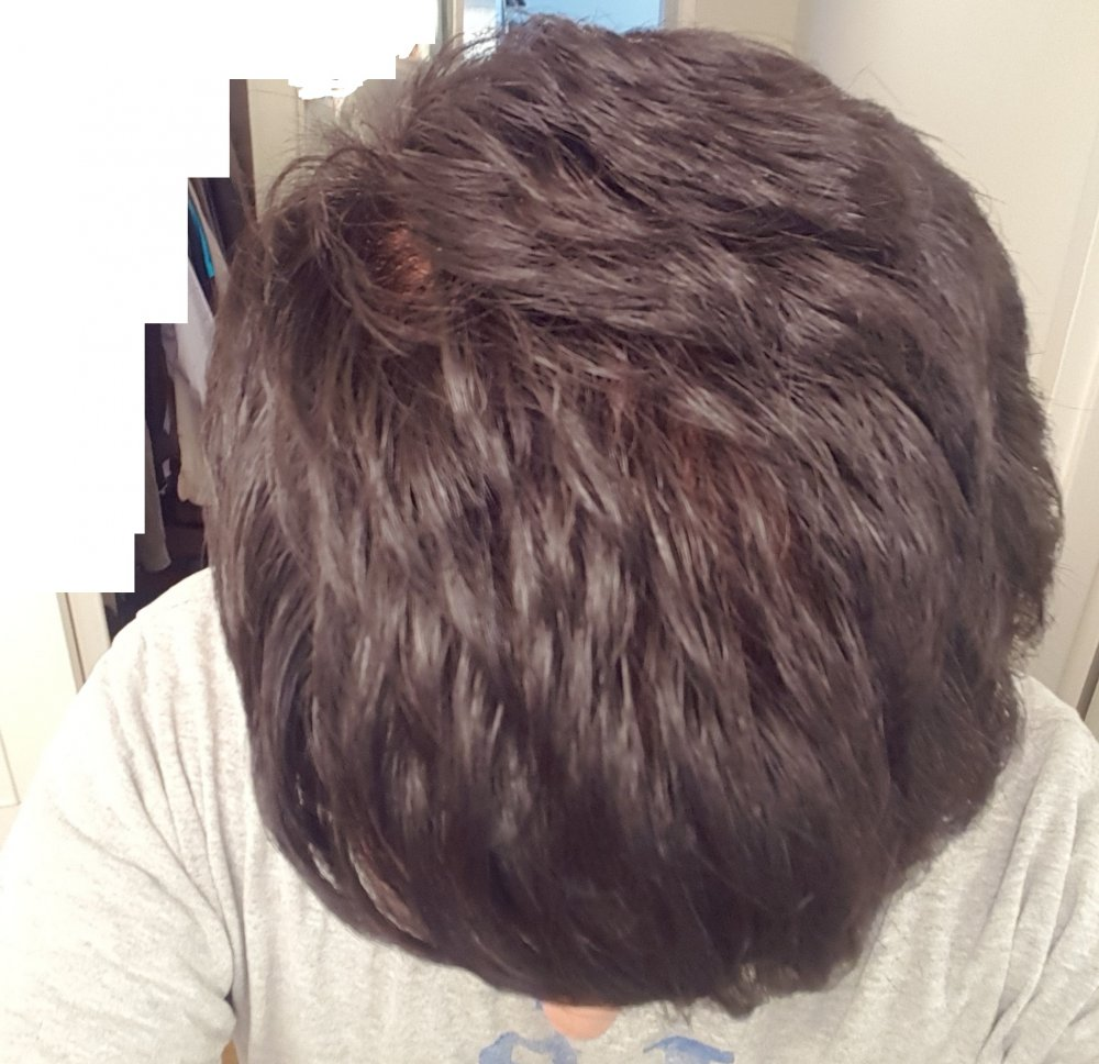 Realistically What Are Chances Dutasteride Will Work After 8 Years On Finasteride Hairlosstalk Forums