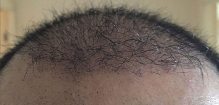 hair result111.jpg
