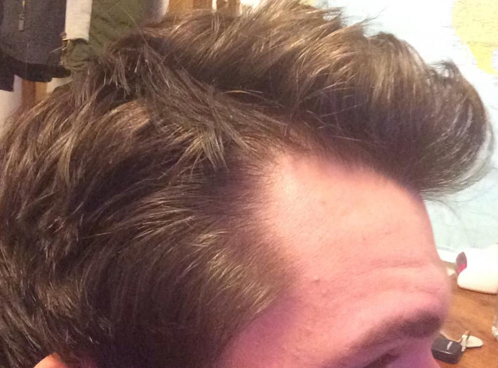 The corners of my hairline is receding