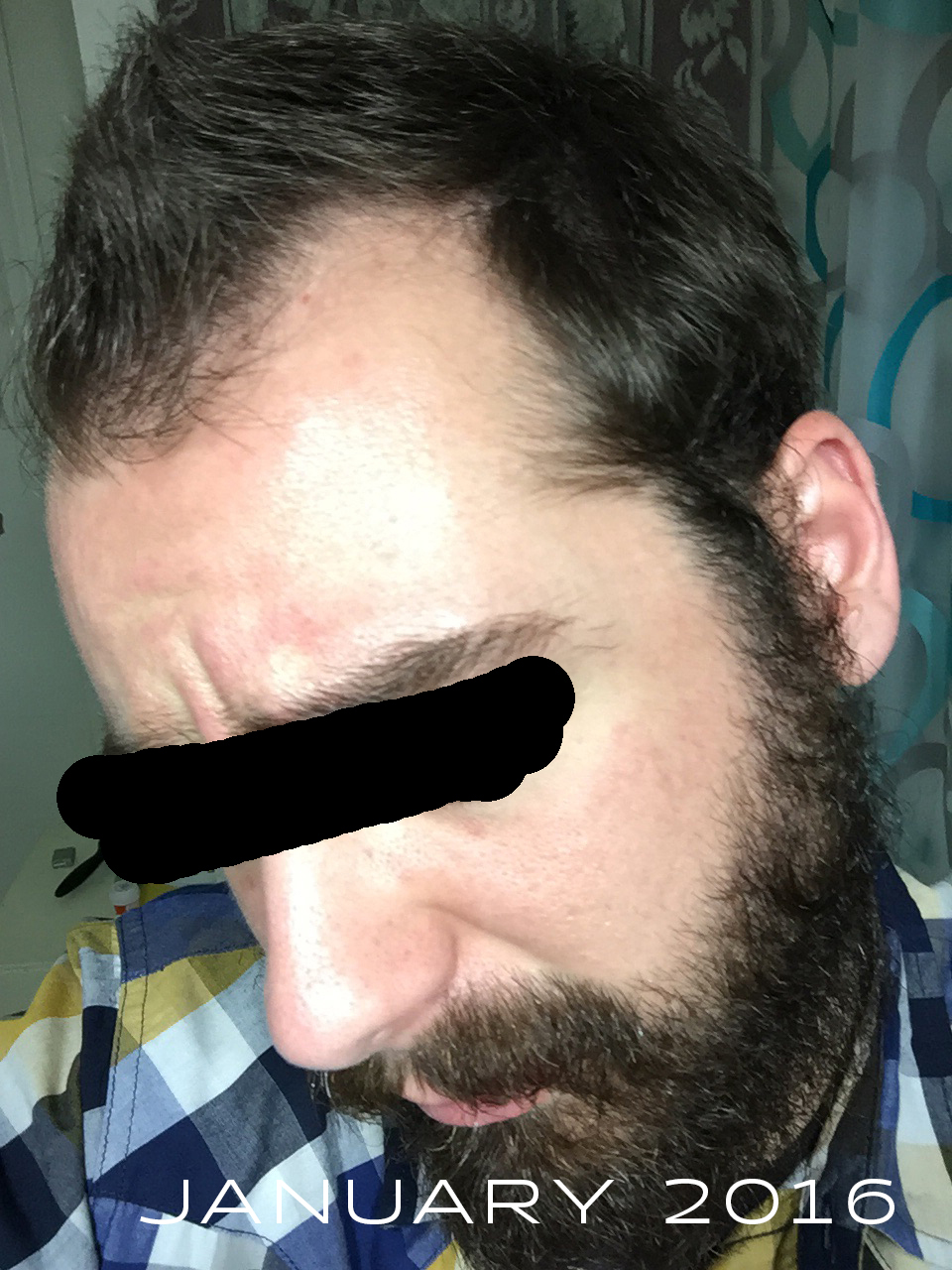 I Think My Finasteride Has Either Gone Bad Or I Ve Built Up An Immunity To The Drug Hairlosstalk Forums