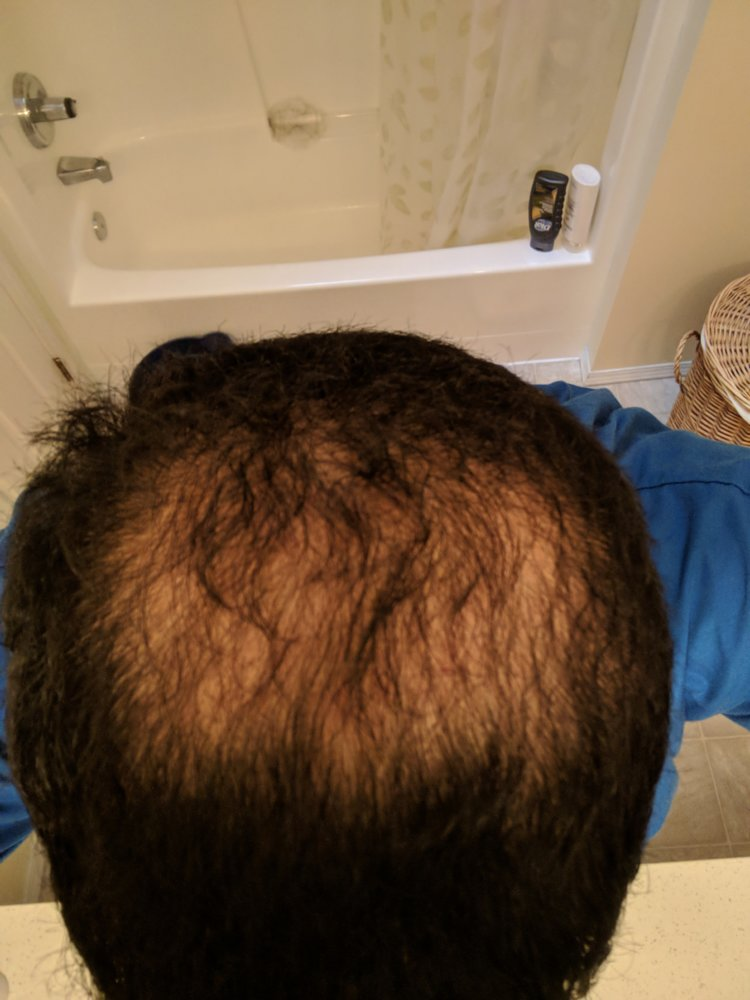 Has Anyone Here Tried Topical Finasteride Vs Oral Finasteride Hairlosstalk Forums
