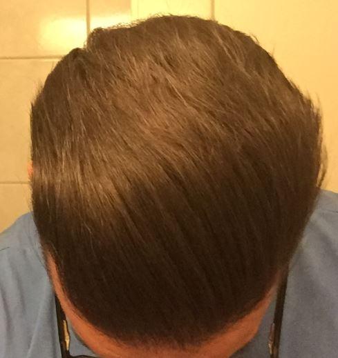Hairs_14_Nov_2017.jpg