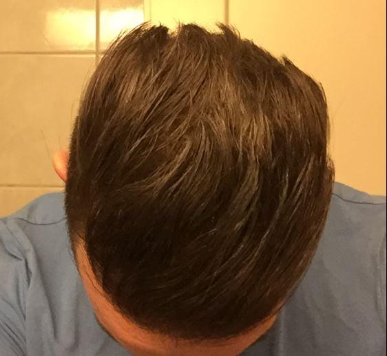 Hairs_M_rz_2018.jpg