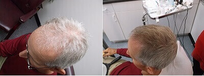 Hemp-Extract-Before-and-After-Hair-Growth.jpg