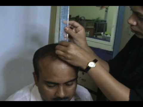 The DHT sensitivity theory is debunk | HairLossTalk Forums