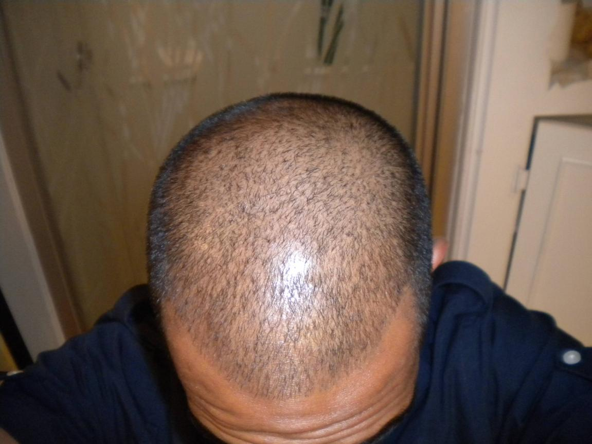 My hair thinning story – Trendy hairstyles in the USA
