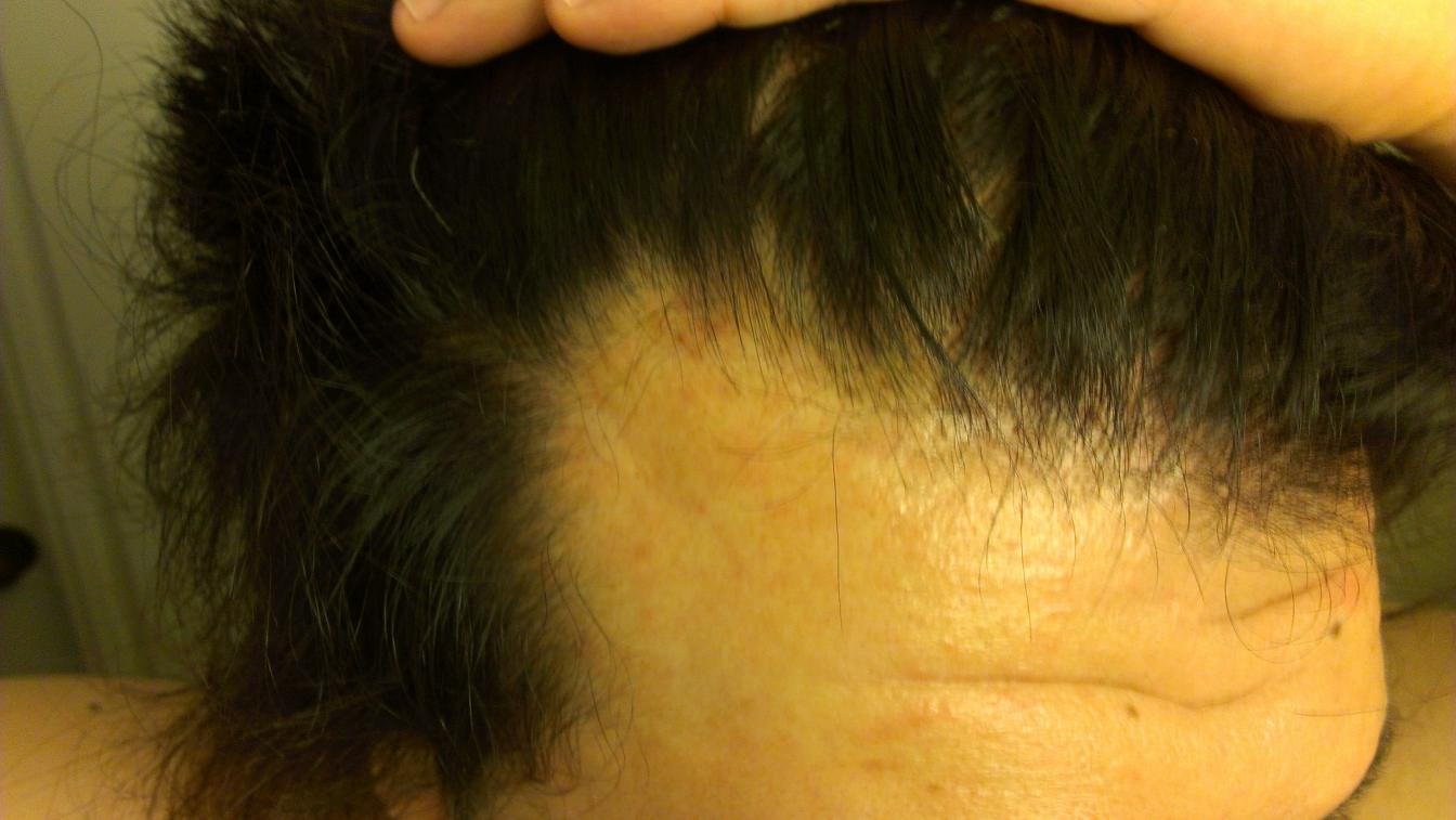 Finasteride Every Other Day Results