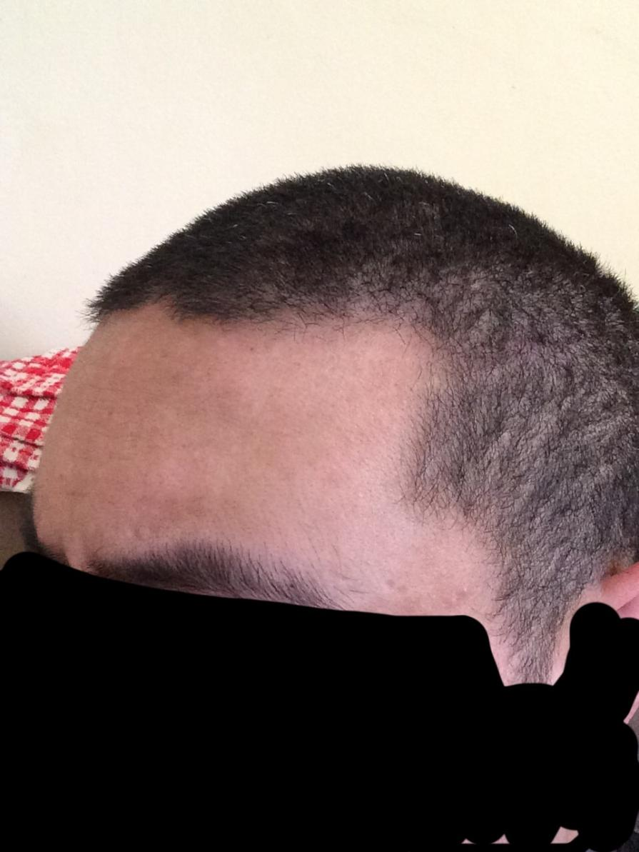 20 Year Old Is My Hairline Starting To Recede Hairlosstalk Forums