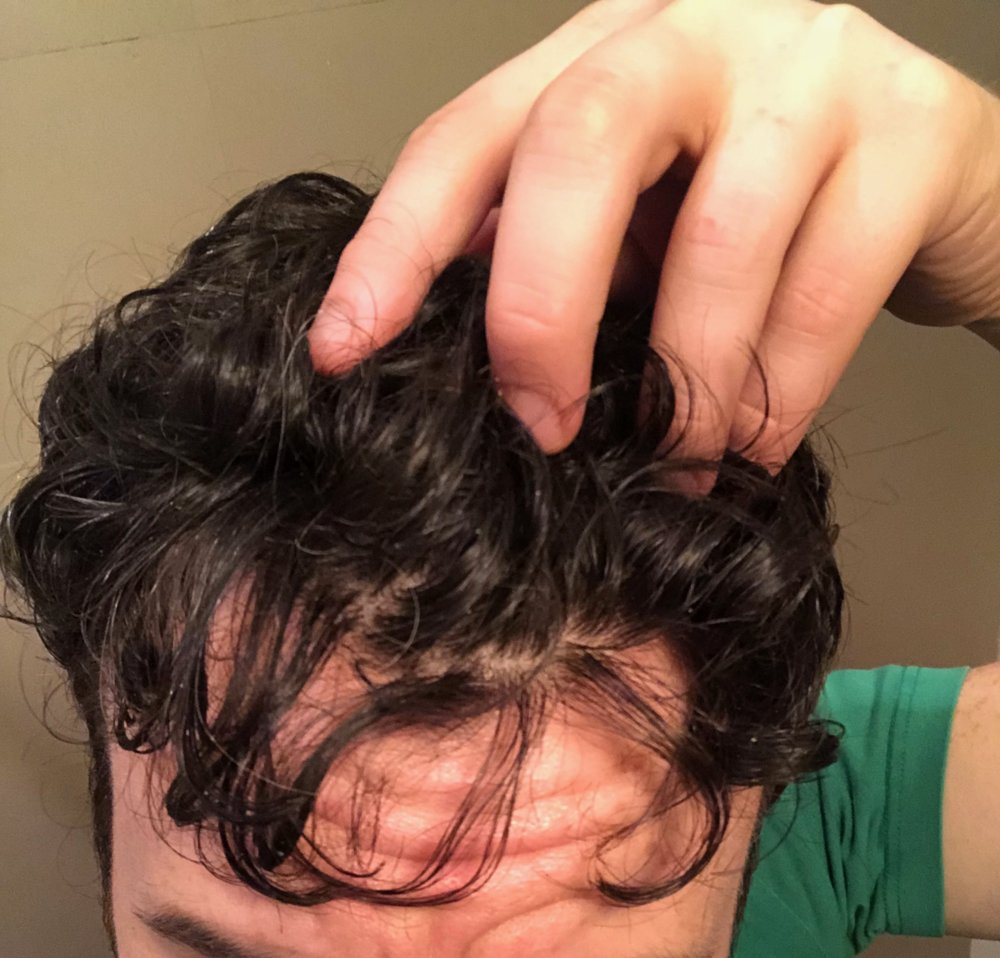 Started Dutasteride 11 5 18 Pictures Updates Hairlosstalk Forums