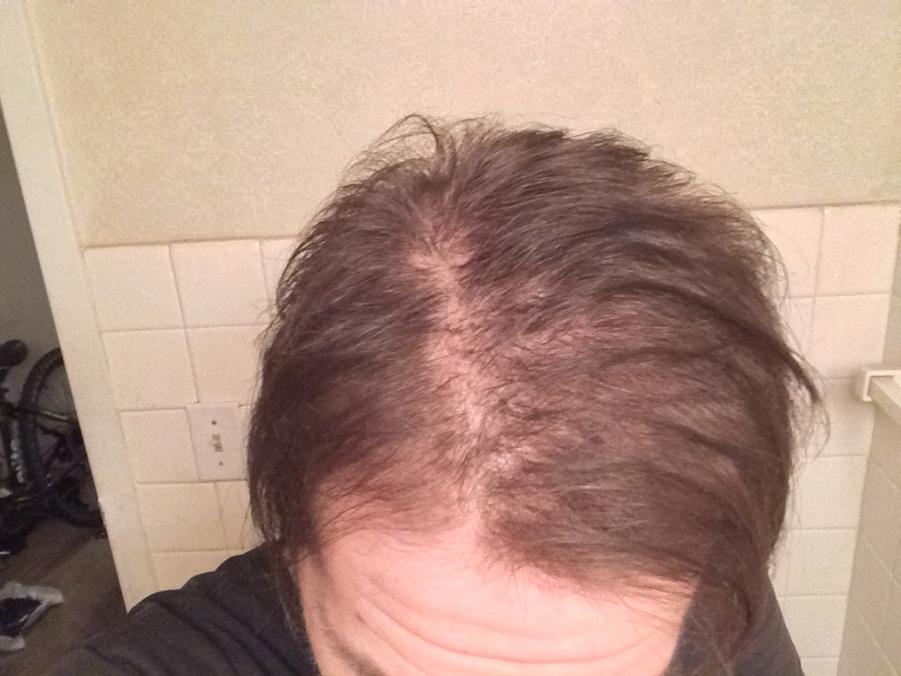 foto 5. How to Fix Hair Regrowth