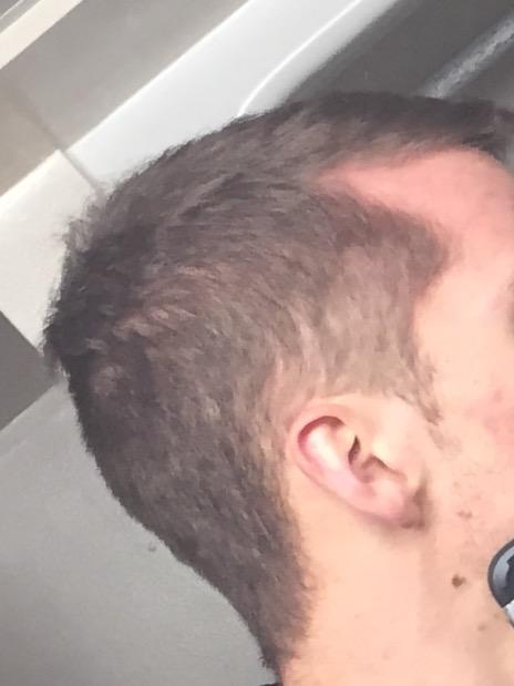 Does propecia regrow hair