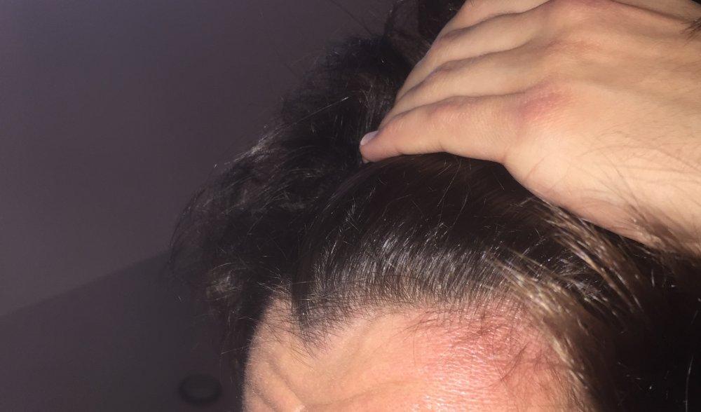 Hair Looks Thin Under Bathroom Light Bathroom Design Ideas