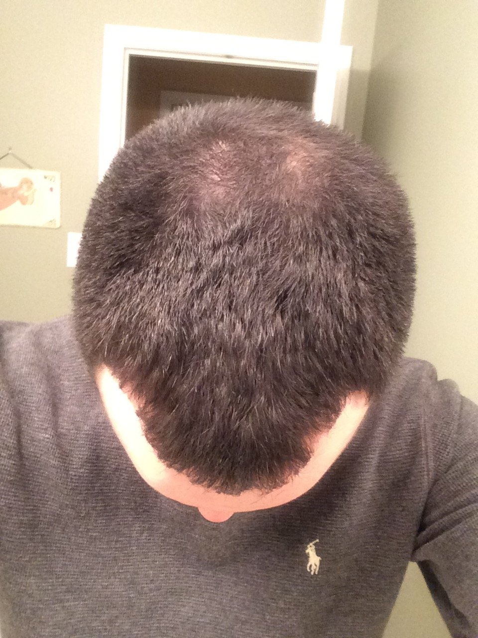 Big 3 After 1 5 Years Currently 25 Years Old Hairlosstalk Forums