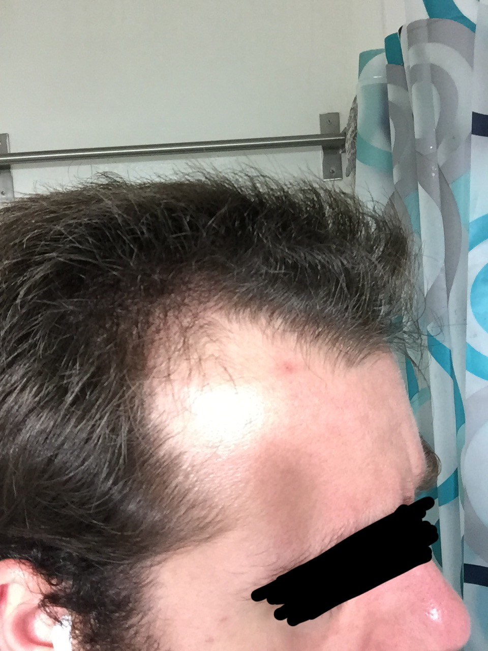 3rd Time Trying Finasteride This Time At 25mg Still Got Side Effects Page 3 Hairlosstalk Forums