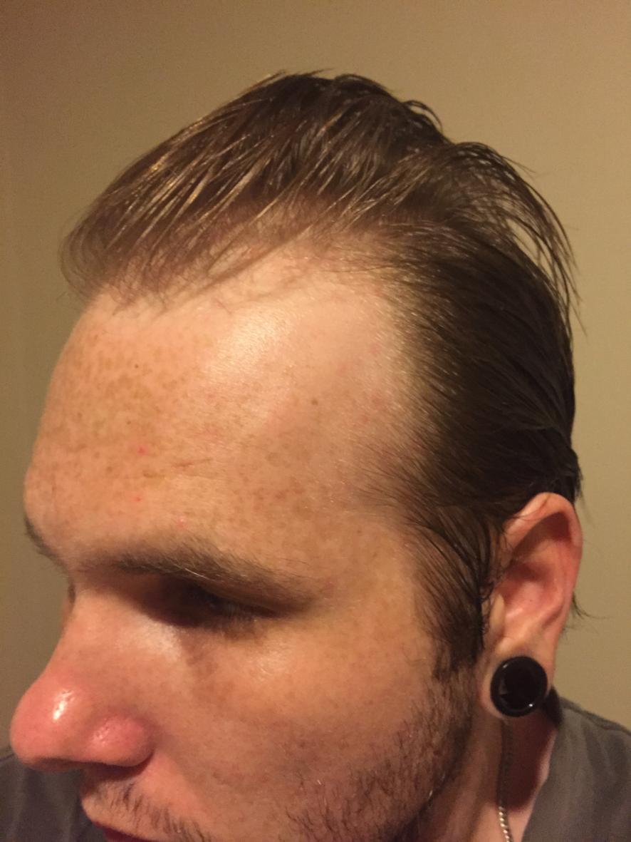 22 Yo - Thinning and Receding Hairline - Buzzcut