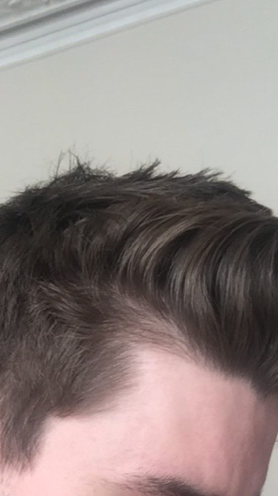 My Hairline Has Gotten So Much Worse On Finasteride Page 2 Hairlosstalk Forums