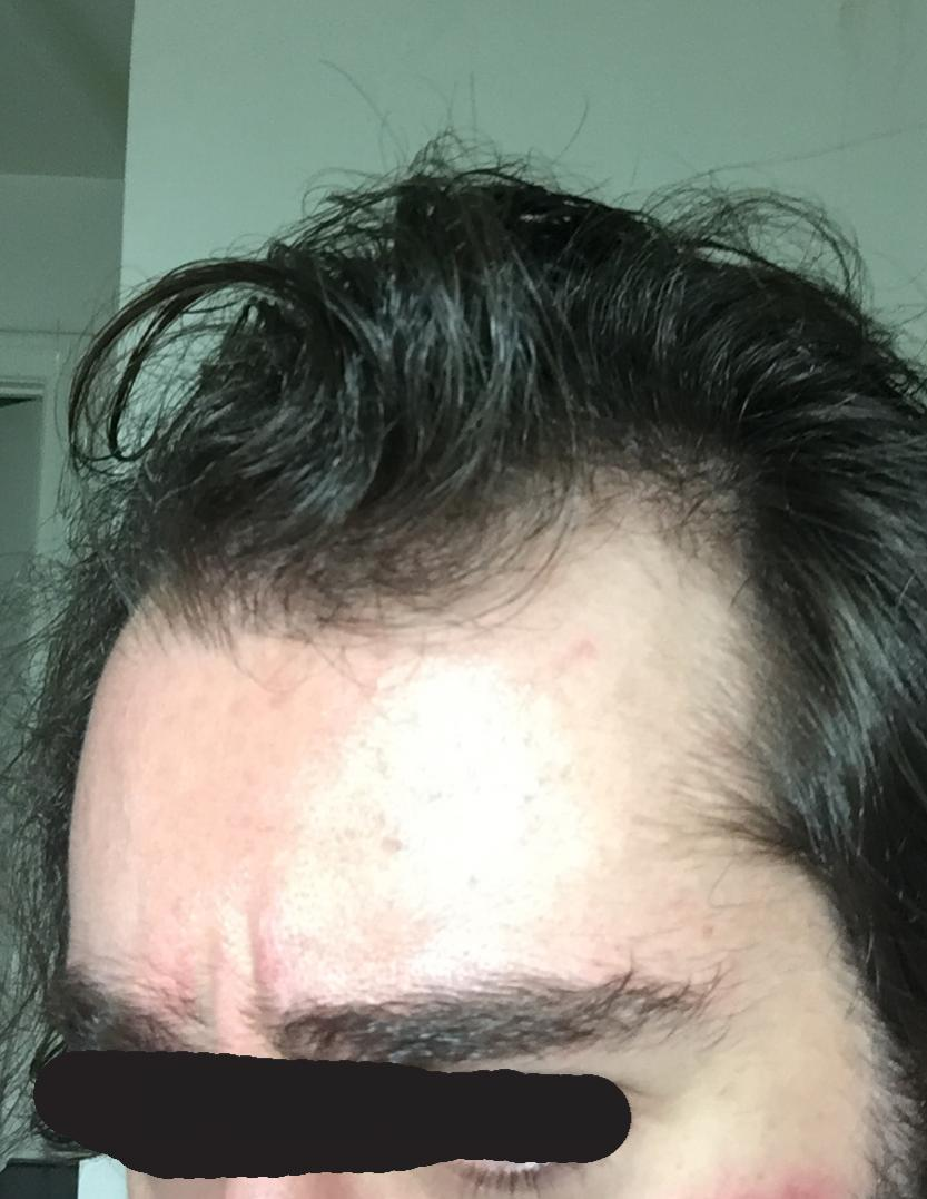 24 year old with agressive male pattern baldness - Norwood 2 5