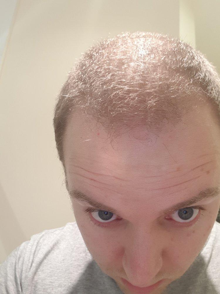 janurary hair.jpg