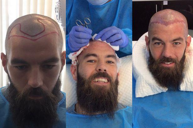 Joe-Ledley-hair-transplant.jpg