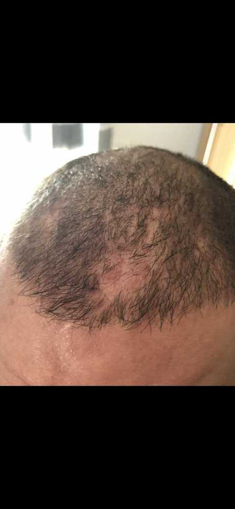 Guy On Reddit Suicidal After Botched Hairtransplant In