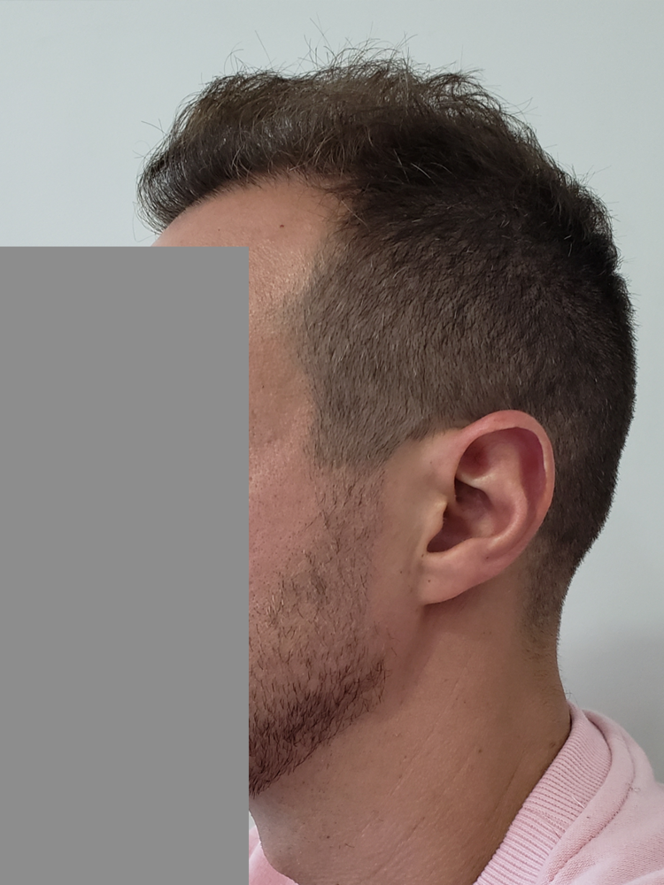 left side of hair copy.png