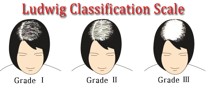 [Image: ludwig-classification-scale-png.84344]
