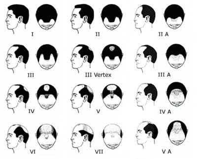 male-pattern-baldness-stages-illustration.jpg