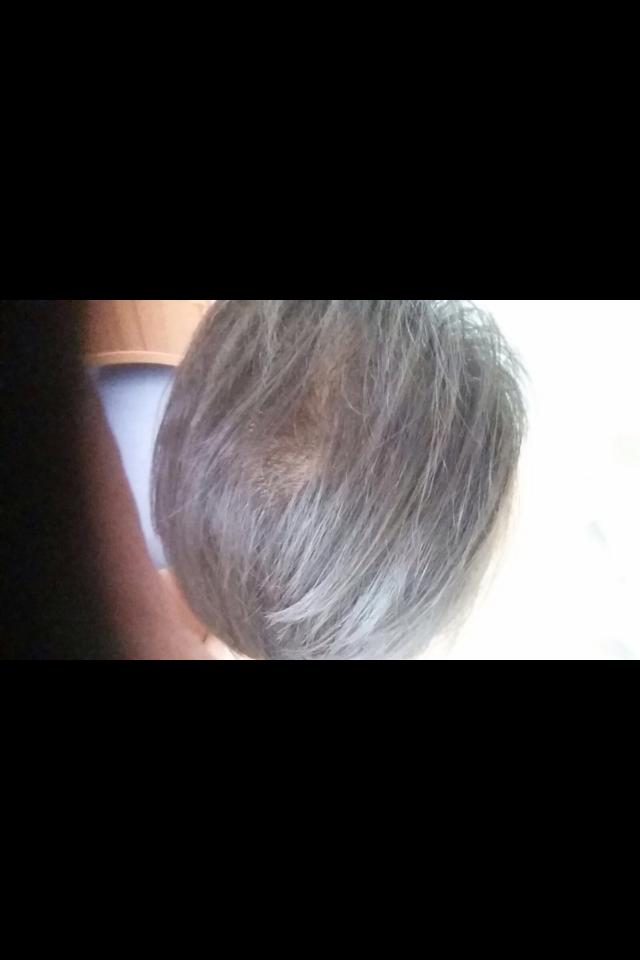 manisha hairloss growth.png